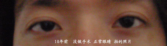 上海九院整容有失败案例吗?上海九院整形失败后悔怎么办?投诉通道