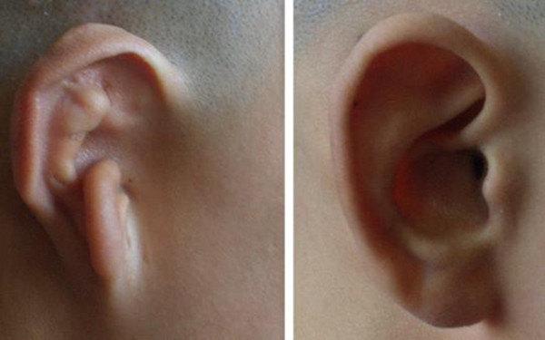 国内最顶级耳再造专家主要有哪些?