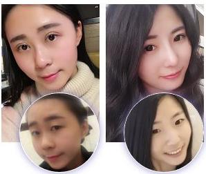 李圣利_上海九院顶级鼻整形鼻修复知名专家